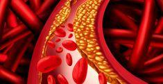 ALIMENTE care previn depunerea de COLESTEROL în pereții arterelor – Ovidiu Bojor – LaTAIFAS Medical, Diet, Cholesterol, Medicine, Med School, Banting, Diets, Per Diem, Active Ingredient