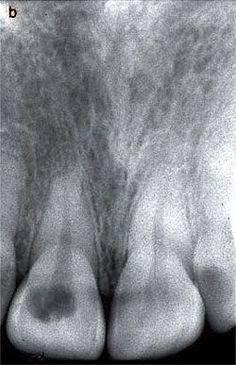 Dentaltown - Internal Resorption? Internal Resorption Internal Resorption. Dentaltown Message Board > Endodontics > http://www.dentaltown.com/MessageBoard/thread.aspx?s=2&f=113&t=234322&pg=1&r=3636971 #InternalResorption #ExternalResorption #Endodontics #Endodontist #Rootcanal #RCT #Dentist #Dentistry #Dental