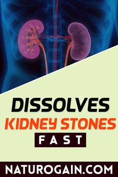 Kid Clear capsules dissolve kidney stones fast without surgery and relieve renal calculi pain. Natural treatment for kidney stones not only treats existing stones but also prevents their reoccurrence. #kidneystones #kidneystone #kidneyhealth Natural Treatments, Improve Kidney Function, Kidney Health, Kidney Stones, Healthy Tips, Surgery, Herbalism, Treats
