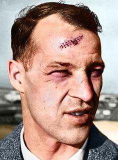 FACE: Stitched up scar. Barely visible black eye. /  Зашитый шрам, еле заметный синяк под глазом.