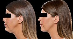 Dr Jarret Morrow MD offers a non-surgical chin removal treatment which reduces the excess fat under the chin. Call us for double chin reduction treatment today. Double Chin Reduction, Double Chin Treatment, Double Chin Removal, Look Younger, How To Remove
