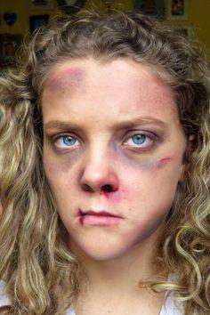 #Bruise #makeup
