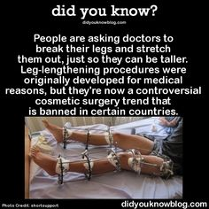 People are asking doctors to break their legs and stretch them out, just so they can be taller. Leg-lengthening procedures were originally developed for medical reasons, but they're now a controversial surgery trend that is banned in certain countries >didukno did you know