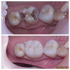#odontologia #odontologo #dientes #sonrisa #dentistry #dentist #teeth #smile #anatomiadental #odontologiarestauradora #odontologiaestetica #esteticadental #dentalesthetics #odontologiarehabilitadora #rehabilitacionoral #prostodoncia #prosthodontics #protesisdental #protesisfija #coronas #carillas #resinas #pasionporlaodontologia #odontofotosreales #líneaoral #emax