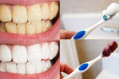 Top Oral Health Advice To Keep Your Teeth Healthy. The smile on your face is what people first notice about you, so caring for your teeth is very important. Unluckily, picking the best dental care tips migh Teeth Whitening Remedies, Best Teeth Whitening, Aloe Vera, Beautiful Teeth, How To Prevent Cavities, Hollywood, White Teeth, Tips Belleza, Oral Hygiene