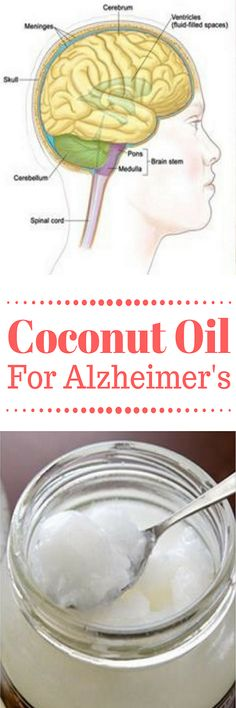 4 tablespoons of coconut oil improves the brain immediately on alzheimer's patients, study shows
