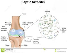 What Is Septic Arthritis Check more at http://www.nhprimecare.org/what-is-septic-arthritis/