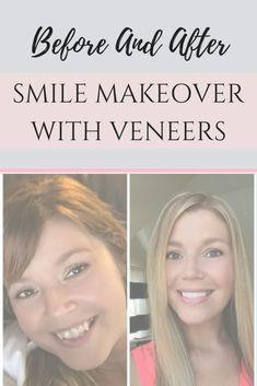 My Smile Makeover Story: Before and After Veneers (PHOTOS + VIDEO) Veneers Teeth, Dental Veneers, Celebrity Teeth, Smile Dental, Smile Makeover, Teeth Braces, Cosmetic Dentistry, Dental Health, Beautiful Smile