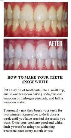 Whiten Teeth.
