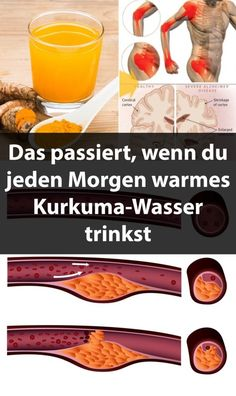 Dies passiert, wenn Sie jeden Morgen warmes Kurkuma-Wasser trinken This happens when you drink warm turmeric water every morning Detox To Lose Weight, How To Lose Weight Fast, Health And Wellness, Health Tips, Health Fitness, Fast Low Carb, Turmeric Water, Salud Natural, Weight Loss Drinks