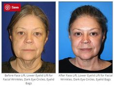 Before & After Face Lift, Lower Eyelid Lift for Facial Wrinkles, Dark Eye Circles, Eyelid Bags