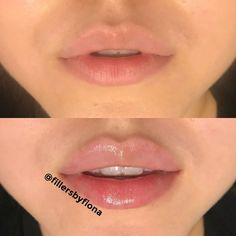 Discover recipes, home ideas, style inspiration and other ideas to try. Natural Lip Plumper, Natural Lips, Lip Background, Lips Quotes, Botox Lips, Korean Lips, Lips Sketch, Thin Lips, Soft Lips