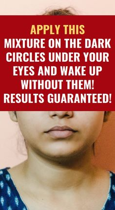 Apply THIS Mixture On the Dark Circles Under Your Eyes and Wake Up Without Them! RESULTS GUARANTEED! Herbal Cure, Herbal Remedies, Health Remedies, Natural Teething Remedies, Natural Home Remedies, Health Quiz, Health Trends, Health Department, Health Insurance