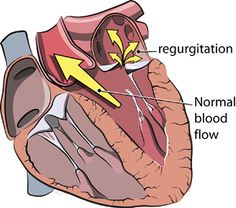 Mitral Regurgitation- Causes, Symptoms, Diagnosis, Treatment and Ongoing care