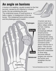 Can someone please give me links concerning Chinese foot binding?