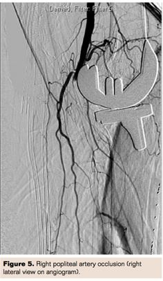 Popliteal Artery Occlusion After Total Knee Replacement: A Vascular Team Approach for Limb Salvage | Vascular Disease Management 11 Issue 9- September 2014