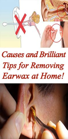 protects our ears from bacteria, Brilliant Tips for Removing Earwax at Home! Health And Beauty, Health And Wellness, Health Fitness, Ear Health, Mental Health, Health Care, Natural Cures, Natural Healing, Get Healthy