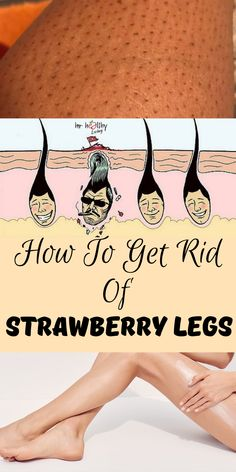How To Get Rid Of Strawberry Legs - Hautpflege Waxing Legs, Skin Care Treatments, Hygiene, Perfect Skin, How To Get Rid, Face Care, Good Skin, Beauty Care, Natural Skin Care
