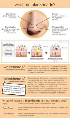 What are blackheads? #skincare