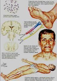 Tetanus - čínská medicína, ricinový olej http://www.encyclopedia.com/medicine/diseases-and-conditions/pathology/tetanus#3435100772