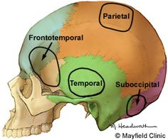 Craniotomy is a cut that opens the cranium. During this surgical procedure, a section of the skull, called a bone flap, is removed to access the brain underneath.