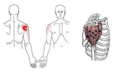 Deltoid | The Trigger Point & Referred Pain Guide. For Upper Back, Shoulder, and Arm pain.