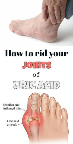 How to rid your joints of uric acid