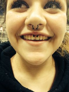 Smilie piercing I just did at express yourself! Done with a black titanium horseshoe