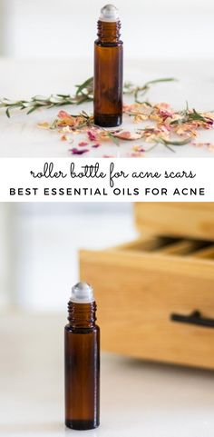 Several essential oils can be used to promote clear healthy skin, reduce skin imperfections, and scars. Essential oils for acne scars can come in handy if you have blemishes on your face that you are trying to remove. Keep reading for the best essential oil roller bottle for acne scars. #essentialoilrollerbottle #essentialoilsforacne #acneremedy #rollerbottleforskin