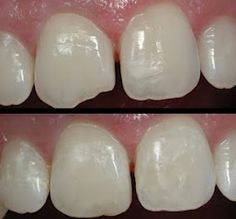 Cosmetic Dentistry- Veneers- to fix those little chips.  Visit www.hcmcdental.com for a quote
