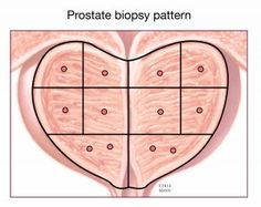 Gleason score indicates the grade of your prostate cancer. The higher the Gleason score, the more aggressive the cancer is likely to be.