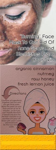 Helps heal acne too. Keep it on longer for better results