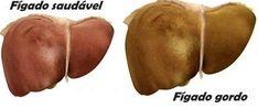 Cure o fígado gordo com apenas 1 fruta - tratamento fácil e econômico! - http://comosefaz.eu/cure-o-figado-gordo-com-apenas-1-fruta-tratamento-facil-e-economico/