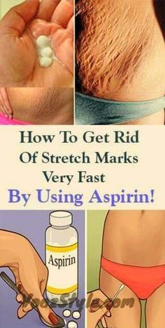 How To Get Rid Of Stretch Marks Very Fast By Using Aspirin!How To Get Rid Of Stretch Marks Very Fast By Using Aspirin! Stretch marks are visible lines which appear on our skin, usually in the abdominal wall, over the thighs, upper arms, buttocks and brea Health And Beauty, Health And Wellness, Health Fitness, Body Fitness, Beauty Care, Beauty Hacks, Beauty Tips, Beauty Products, Stretch Mark Remedies