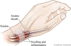 De Quervain's Syndrome is inflammation of the tendon sheath of Extensor Pollicis Brevis and Abductor Pollicis Longus located at the thumb side of the wrist. Wrist Pain, Hand Wrist, Repetitive Strain Injury, Natural Remedies For Arthritis, Self Treatment, Carpal Tunnel Syndrome, Natural Pain Relief, Nerve Pain, Chiropractic