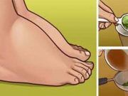 Watch This Video Ambrosial Home Remedies Swollen Feet Ideas. Inconceivable Home Remedies Swollen Feet Ideas. Foot Remedies, Arthritis Remedies, Headache Remedies, Sleep Remedies, Skin Care Remedies, Acne Remedies, Health Remedies, Holistic Remedies, Natural Home Remedies