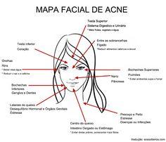 Medicina chinesa associa aparecimento de acne no rosto com saúde de órgãos internos.