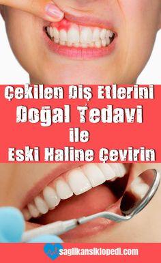 Çekilen diş etlerini doğal tedavi ile eski haline çevirin! #dişetleri #doğaltedaviler #dişetisorunları #dişetihastalıkları #sağlıkansiklopedi