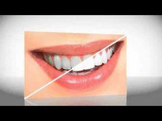 http://advanceddentistry.com/services/cosmetic-dentist-las-vegas/ #visit_website #dental_implants #website #click_here #info #cosmetic_dentists #dental_veneers #visit #dentist #dentures #http://advanceddentistry.com/services/cosmetic-dentist-las-vegas/ #http://advanceddentistry.com #cosmetic_bonding