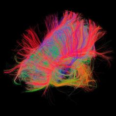 The fibers of the brain! First time we can see their network! Its pretty!