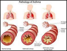 Steps to Get off your #Asthma #Inhaler-Asthma #Herbal #Remedies  According to modern medicine, it is not easily curable chronic disease in which the patient has to rely on # during asthma attacks but in Ayurveda, asthma can be very well managed by natural treatment without having side effects and there will be no addiction to inhalers. These natural remedies can help to manage the disease as there is no cure for asthma