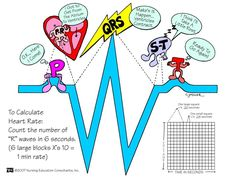 """"""" Great SUPER BASIC visual for people who struggle with EKG interpretation. I am a stickler… so I do not suggest relying solely on counting the Rs to determine rate… not everyone is in normal sinus..."""