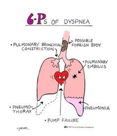 6-P's of dsypnea (difficulty breathing).