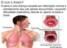 Farmacêutica Curiosa: Vitamina D ajuda a combater asma e favorece desenv...