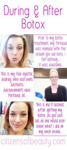 Why I Got Botox in My 20′s and Now 30′s via @citizensofbeauty #allergan #botox #injections