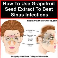 Sinusitis Remedies How To Use Grapefruit Seed Extract To Beat Sinus Infections - Learn how to use the healing powers of grapefruit seeds to clear sinus infections Sinus Remedies, Health Remedies, Allergy Remedies, Natural Cures, Natural Healing, Natural Beauty, Grapefruit Seed Extract Benefits, Newport Beach, Nirvana