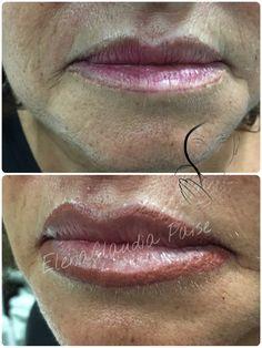 Correzione labbra , pigmenti Biotek - il vecchio lavoro di un'altro operatore  #girls #food #moda #italia #fitness #body #Life #estetica #ricostruzione #unghie #belive #nails #gel #art #gel #tattoo #tatuaggio #ink #truccopermanente #brows #permanentmakeup #makeup #all_pix #tag #eyeliner #lips #love #Napoli #biotek