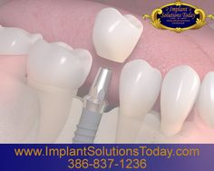 With the right information and the skilled hands of Dr. David Turbyfill, a board-certified oral surgeon, you can have a successful and rewarding dental implant procedure. www.implantsolutionstoday.com | 386-837-1236