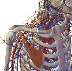 Thoracic outlet syndrome (TOS) is more understood and found more frequently than once thought. is composed of three types: neurogenic, venous, and arterial. Body Therapy, Hand Therapy, Massage Therapy, Physical Therapy, Massage Tips, Massage Room, Massage Techniques, Neck And Back Pain, Neck Pain