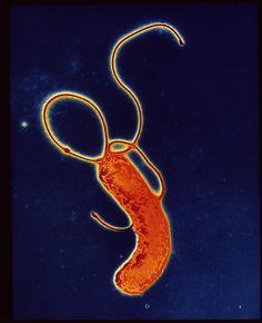 Helicobacter Pylori Bacteria Canvas Print / Canvas Art by A.b. Dowsett